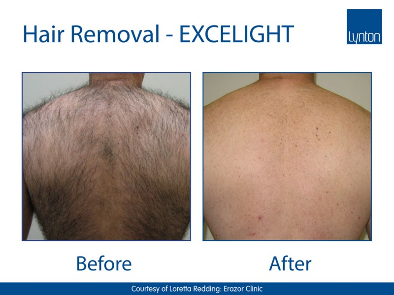 EXCELIGHT-BA-Hair-Removal-2-Back----Copy
