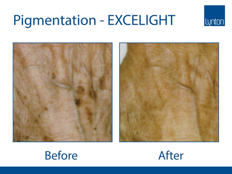 EXCELIGHT---PIGMNETATION-2---The-Lynton-Clinic-